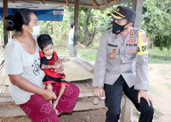 Nusabali.com - bocah-6-tahun-lumpuh-orangtua-terkena-phk