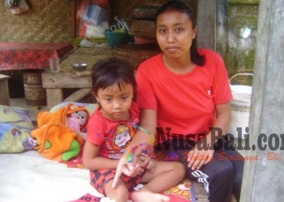 Nusabali.com - lima-warga-susut-digigit-anjing-rabies