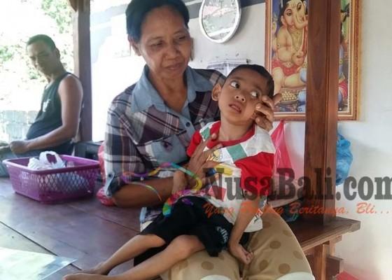 Nusabali.com - lumpuh-sejak-lahir-berat-badannya-hanya-7-kg-di-usia-6-tahun