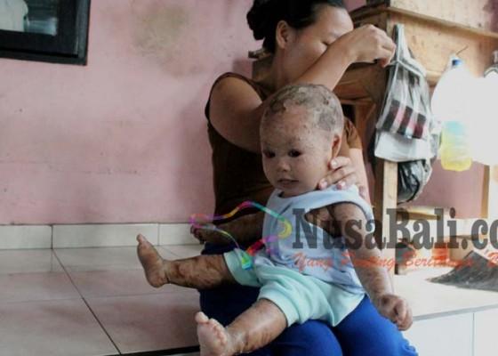 Nusabali.com - usia-6-bulan-mulai-tumbuh-rambut-namun-mata-tak-bisa-berkerdip
