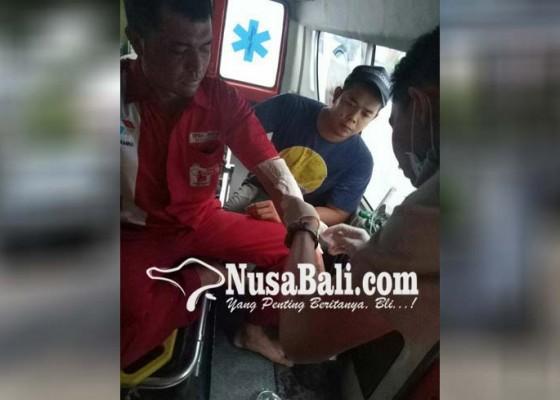 Nusabali.com - karyawan-spbu-terbakar