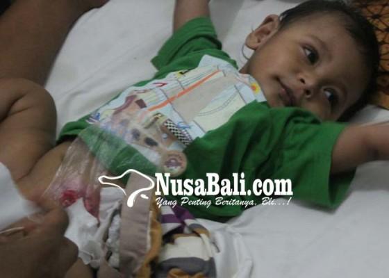 Nusabali.com - lahir-tanpa-lubang-anus-dan-derita-bocor-jantung