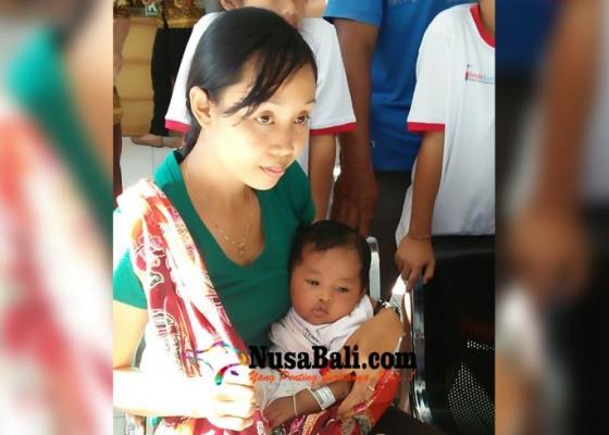 Nusabali.com - 20-anak-operasi-bibir-sumbing-gratis