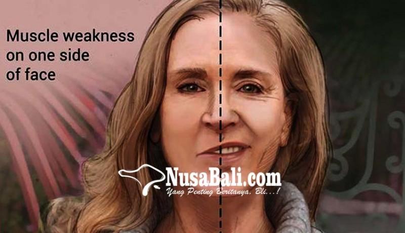 www.nusabali.com-kesehatan-mengenal-penyakit-bells-palsy