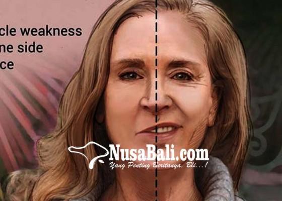 Nusabali.com - kesehatan-mengenal-penyakit-bells-palsy