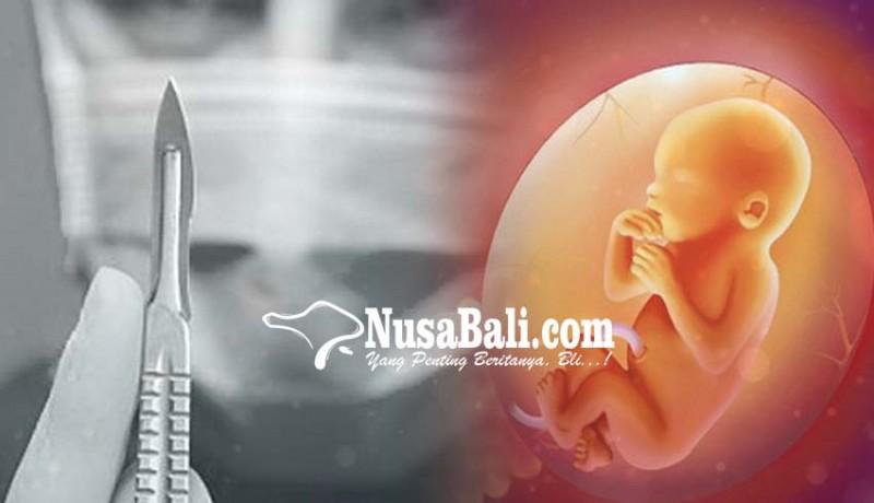 www.nusabali.com-dukun-aborsi-bertarif-rp-2-juta-diringkus