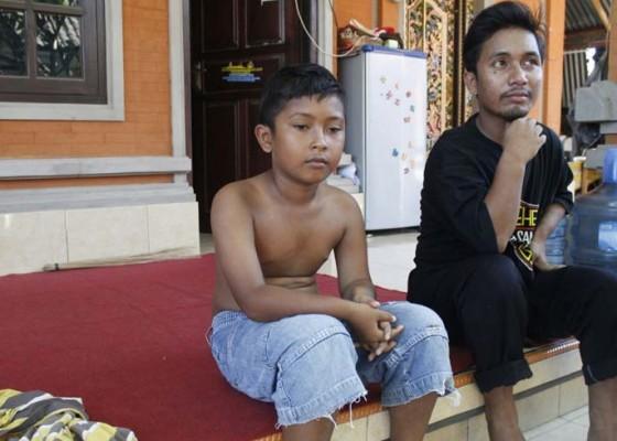 Nusabali.com - dirongrong-tumor-tulang-sejak-usia-setahun