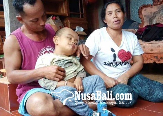 Nusabali.com - ayah-polio-anak-derita-hidrocepalus