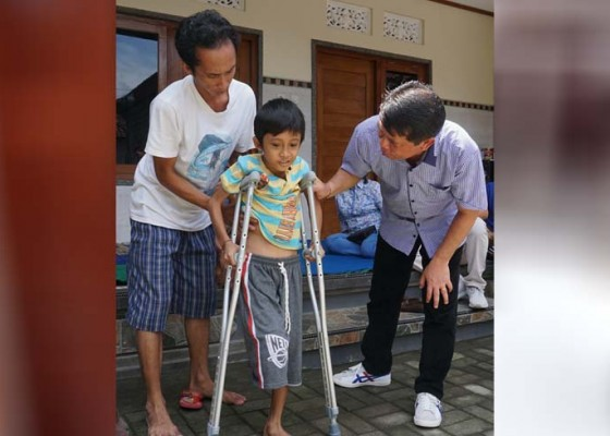 Nusabali.com - bupati-suwirta-kunjungi-anak-yang-kakinya-diamputasi
