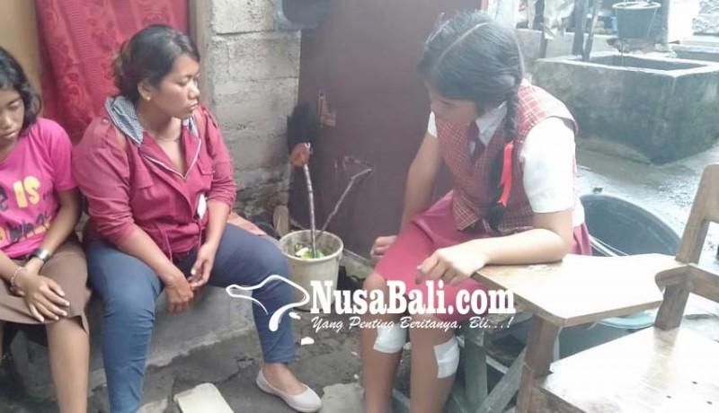 www.nusabali.com-korban-trauma-ibunya-terancam-diputus-kerja