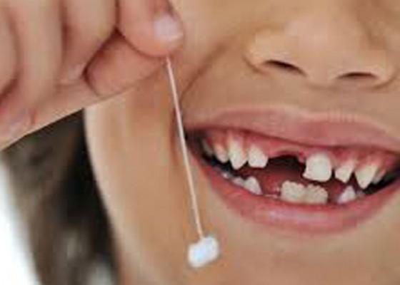 Nusabali.com - gigi-susu-anak-rentan-kena-karies-gigi