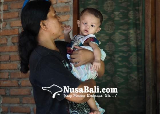 Nusabali.com - dibuatkan-lubang-anus-darurat-kantong-pembuangan-diganti-tiap-4-hari