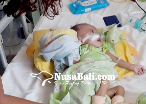 Nusabali.com - bayi-empat-bulan-asal-banyuwangi-alami-jantung-bocor