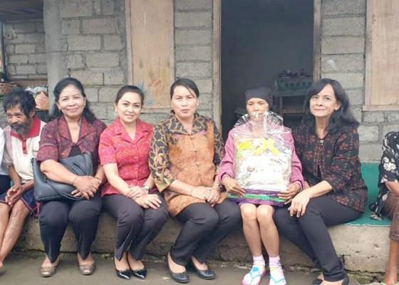 Nusabali.com - apresiasi-program-homecare-seniasih-giri-prasta-motivasi-penderita-odgj-dan-kanker