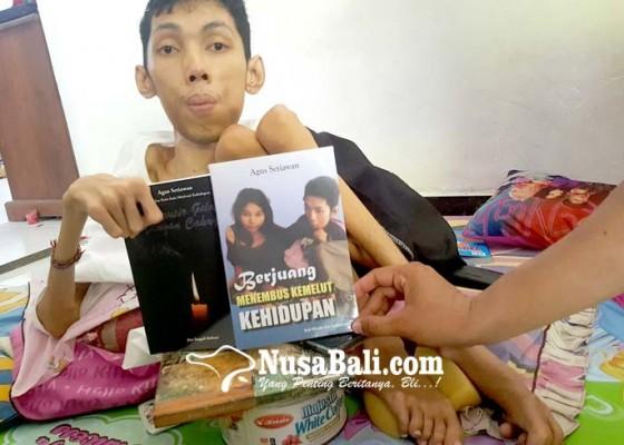 Nusabali.com - disabilitas-namun-jadi-tulang-punggung-keluarga