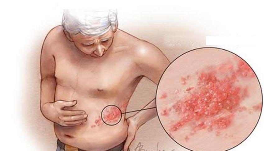 Nusabali Com Bagaimana Mengobati Herpes Zoster