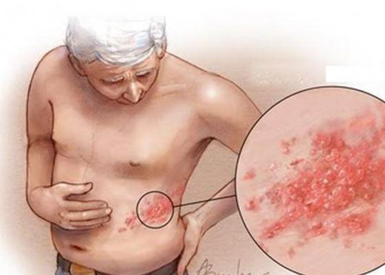 Nusabali.com - bagaimana-mengobati-herpes-zoster