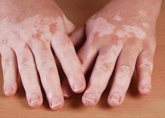Nusabali.com - mengenal-lebih-dekat-tentang-vitiligo