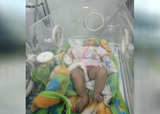 Nusabali.com - bayi-tanpa-tempurung-kepala-dirujuk-ke-sanglah