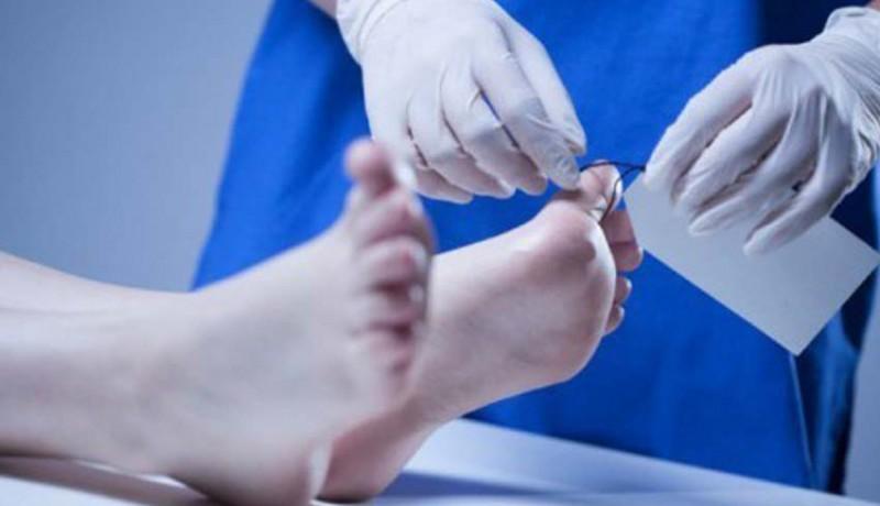 www.nusabali.com-kapolri-didesak-lakukan-autopsi
