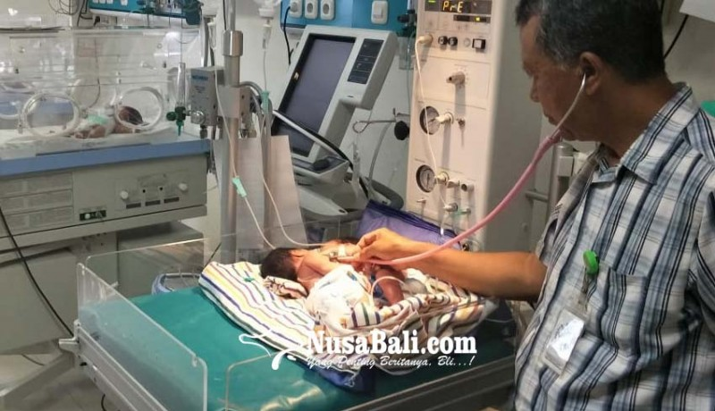 www.nusabali.com-bayi-kembar-dempet-bagian-dada-dan-perut-lahir-di-seririt