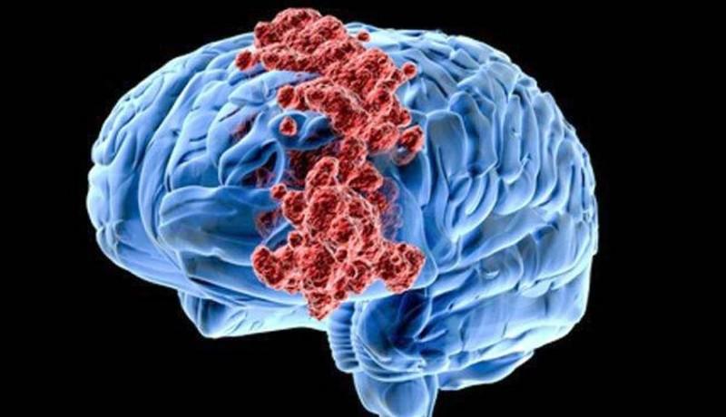 NUSABALI.com - Masyarakat Agar Kenali Kanker Otak Sejak Dini