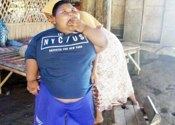 Nusabali.com - satia-bocah-berbobot-101-kg-akhirnya-meninggal