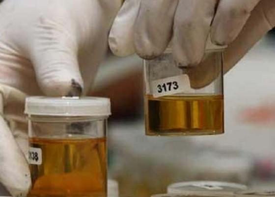 Nusabali.com - puluhan-pegawai-rutan-dites-urine