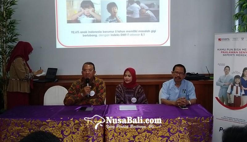 www.nusabali.com-riset-di-indonesia-888-punya-masalah-gigi-berlubang