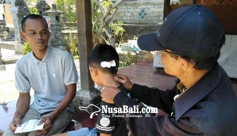www.nusabali.com-kepala-bocah-digigit-anjing