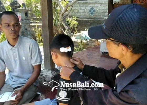 Nusabali.com - kepala-bocah-digigit-anjing