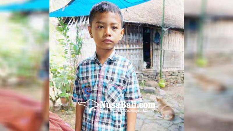 www.nusabali.com-ditinggal-orang-tua-siswa-disabilitas-hidup-memprihatinkan