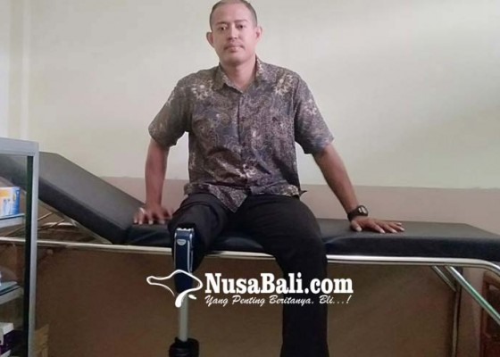 Nusabali.com - kaki-diamputasi-pasca-ditembaki-kelompok-ali-kalora