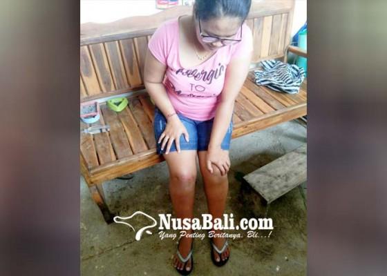 Nusabali.com - belum-ditemukan-anjing-gigit-tujuh-warga-padangan-pupuan