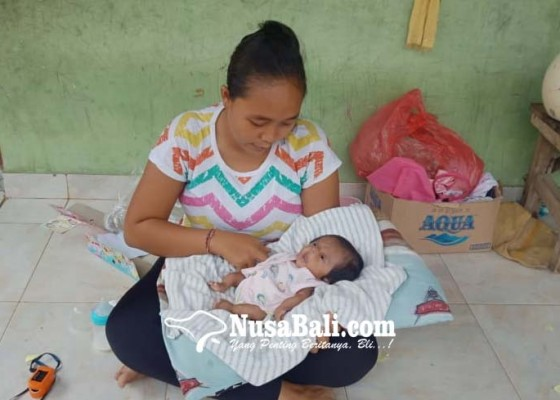 Nusabali.com - usai-telubulanan-bayi-tanpa-tempurung-meninggal