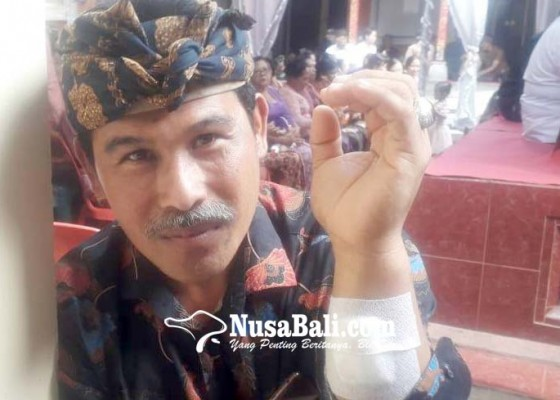 Nusabali.com - pegawai-bagian-hukum-dipatuk-ular