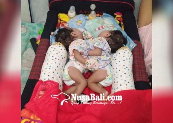 Nusabali.com - bayi-kembar-siam-dari-seririt-akhirnya-meninggal
