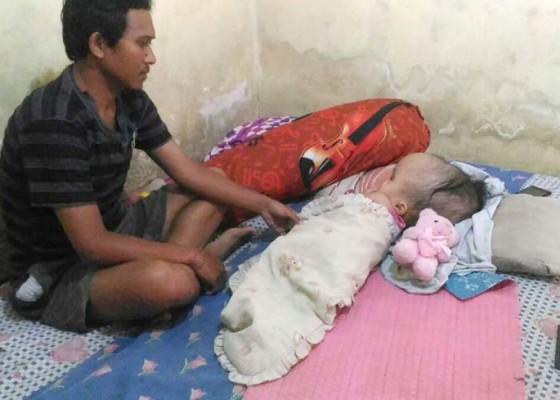 Nusabali.com - anak-hidrosefalus-dambakan-bantuan