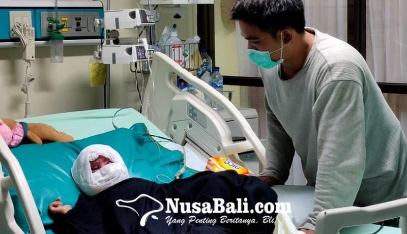 www.nusabali.com-wajah-balita-melepuh-setelah-tabrak-gayung-berisi-air-panas