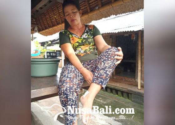 Nusabali.com - 2-hari-beruntun-anjing-liar-gigit-6-warga