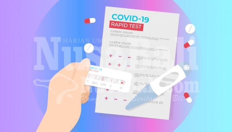 www.nusabali.com-wartawan-di-bali-diagendakan-dapat-vaksinasi-covid-19