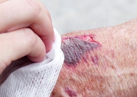 Nusabali.com - kesehatan-pertolongan-pertama-pada-luka-bakar