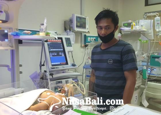 Nusabali.com - bayi-usia-tiga-bulan-di-buleleng-derita-penyakit-hirschsprung